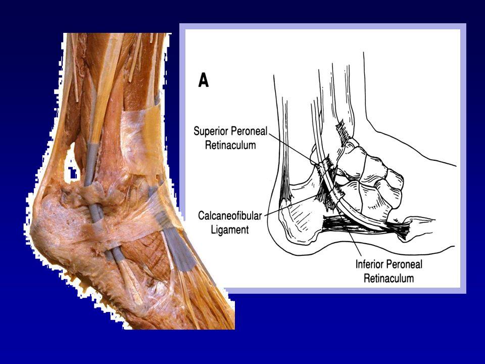 Le retinaculum des extenseurs est constitué par un épaississement de la gaine tendineuse