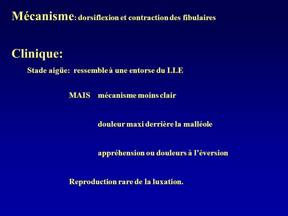 Mécanisme: dorsiflexion et contraction des fibulaires Clinique: