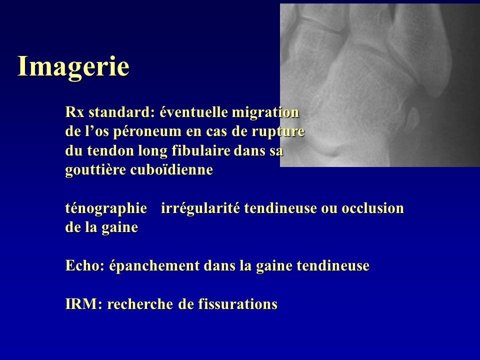 Imagerie Rx standard: éventuelle migration