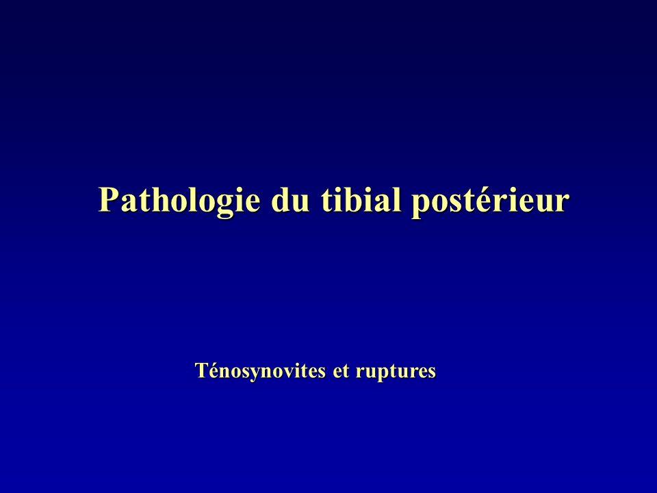 Pathologie du tibial postérieur