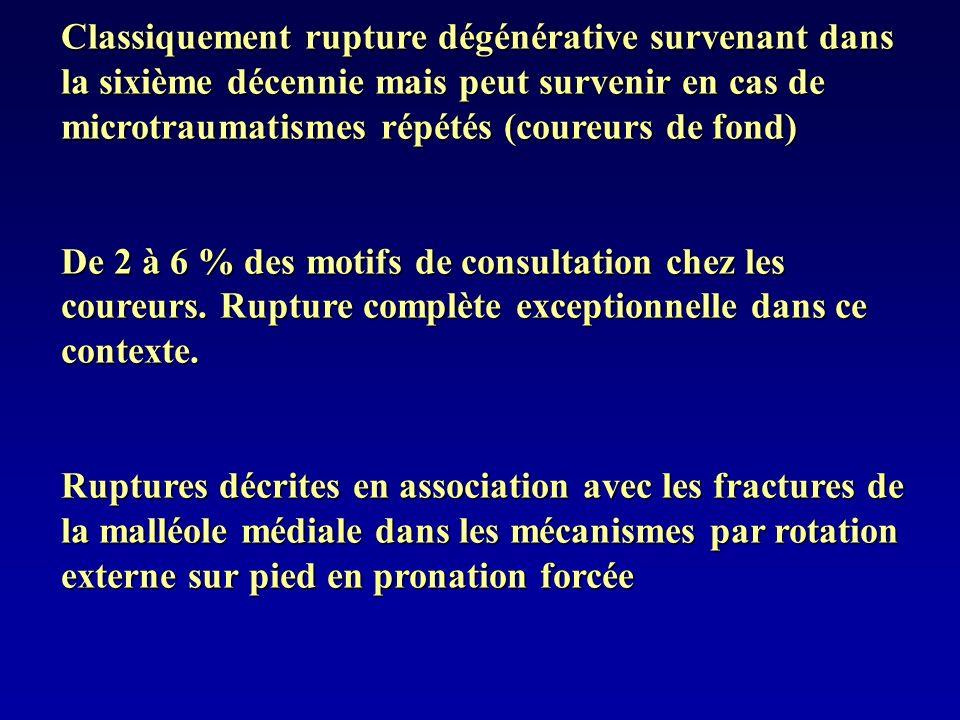 Classiquement rupture dégénérative survenant dans la sixième décennie mais peut survenir en cas de microtraumatismes répétés (coureurs de fond)
