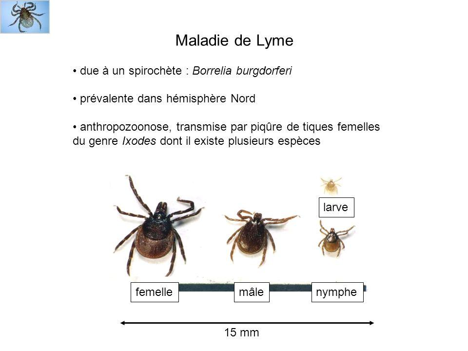 Maladie de Lyme due à un spirochète : Borrelia burgdorferi