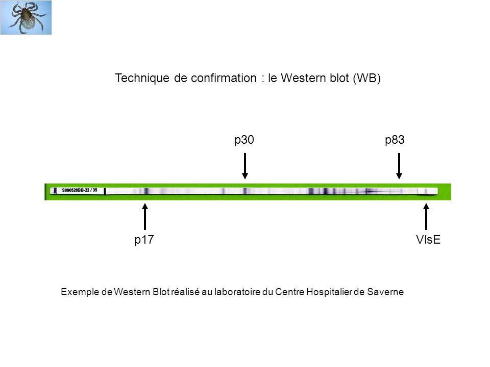 Technique de confirmation : le Western blot (WB)