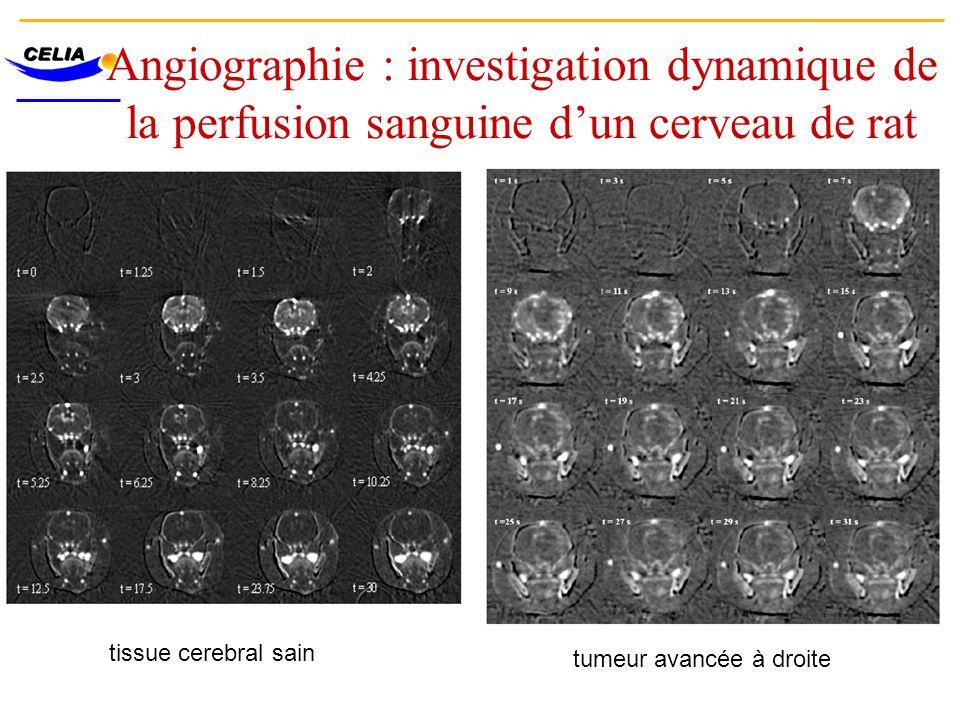 Angiographie : investigation dynamique de la perfusion sanguine d'un cerveau de rat
