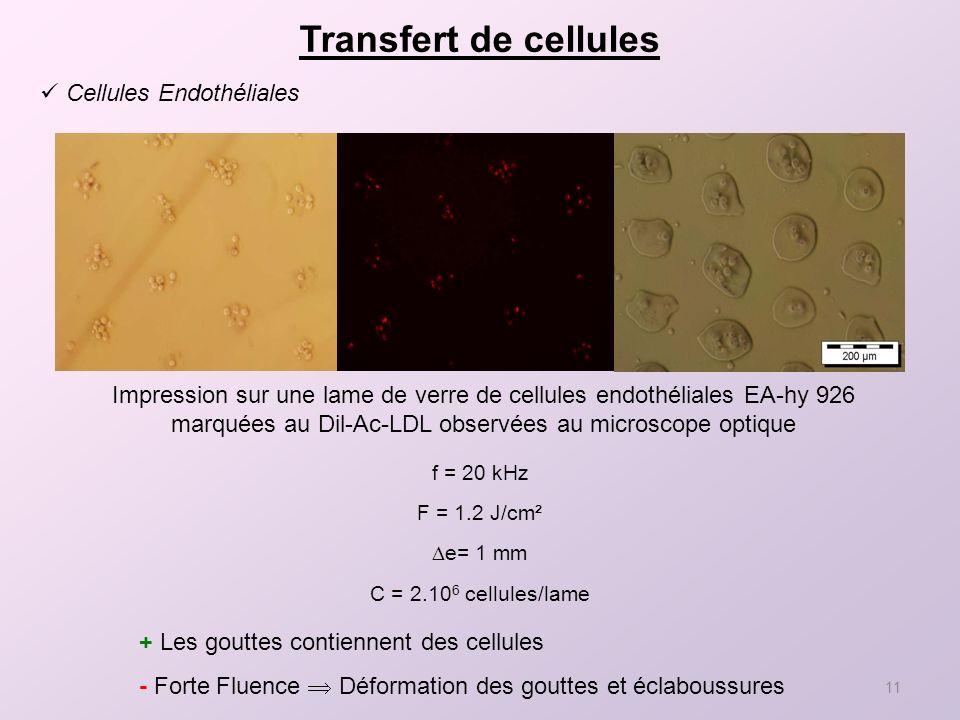 Transfert de cellules Cellules Endothéliales