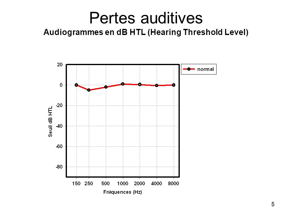Pertes auditives Audiogrammes en dB HTL (Hearing Threshold Level)