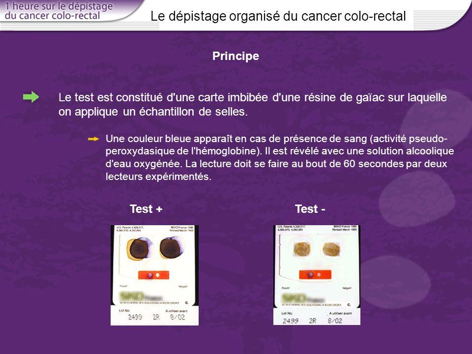 Le dépistage organisé du cancer colo-rectal