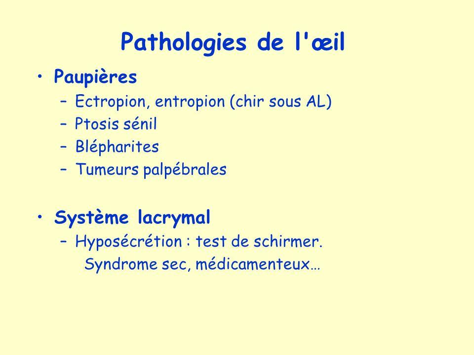 Pathologies de l œil Paupières Système lacrymal