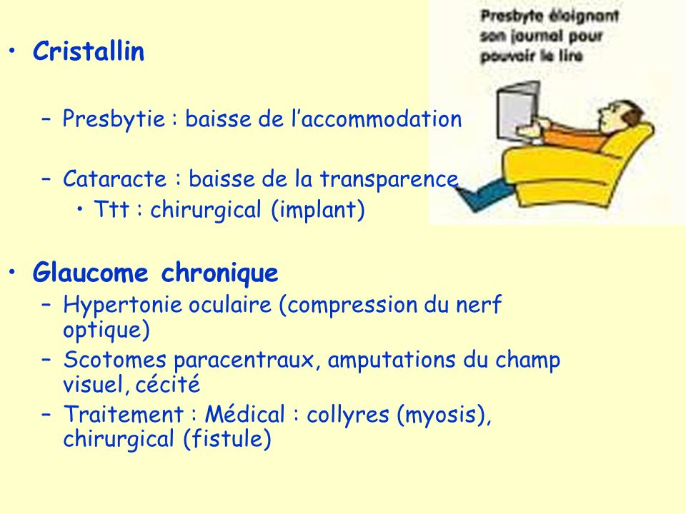 Cristallin Glaucome chronique Presbytie : baisse de l'accommodation