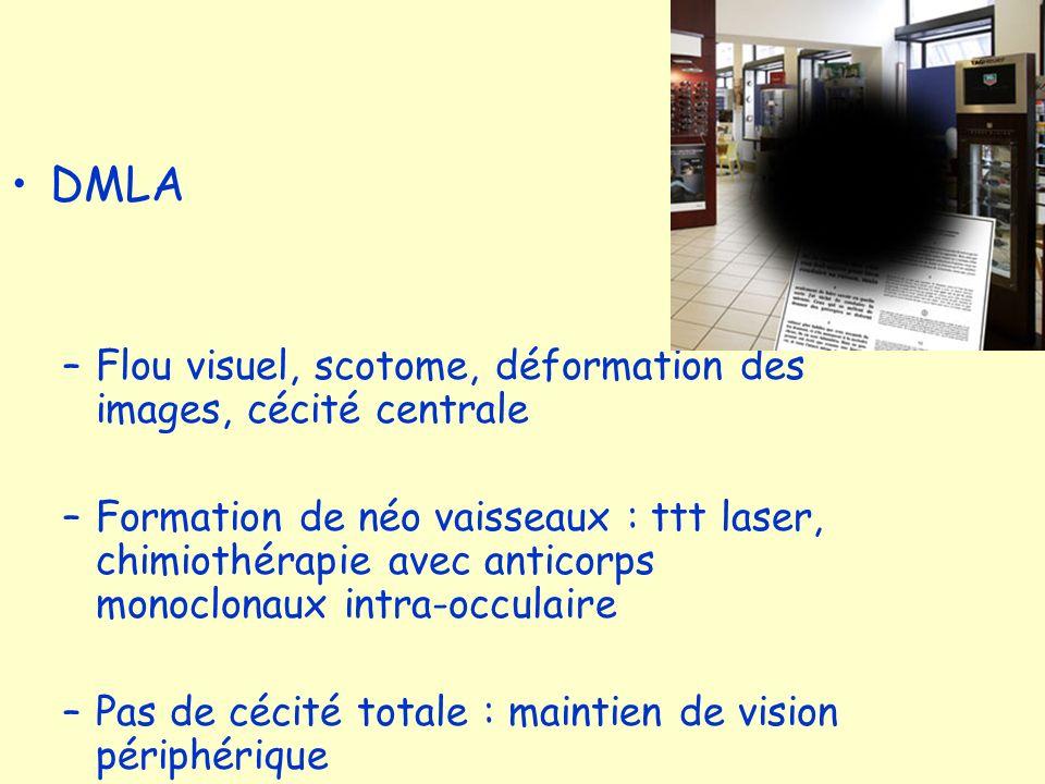 DMLA Flou visuel, scotome, déformation des images, cécité centrale