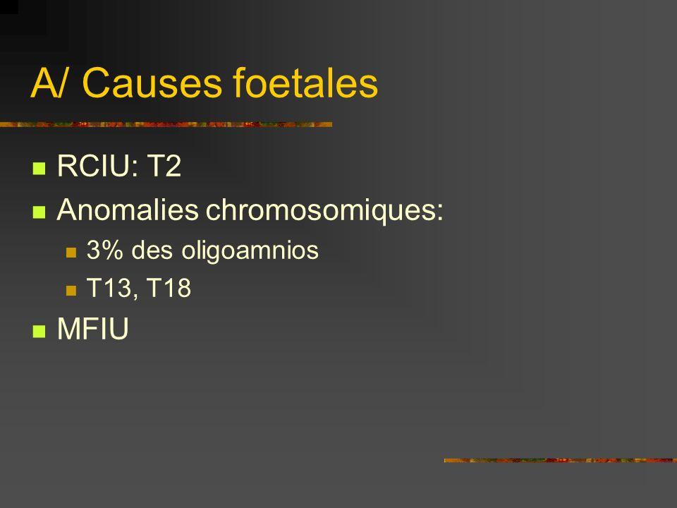 A/ Causes foetales RCIU: T2 Anomalies chromosomiques: MFIU