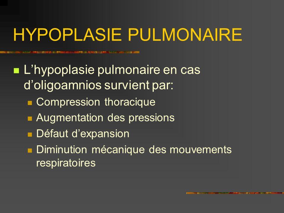 HYPOPLASIE PULMONAIRE
