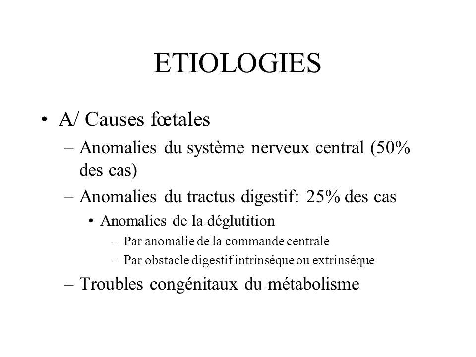 ETIOLOGIES A/ Causes fœtales