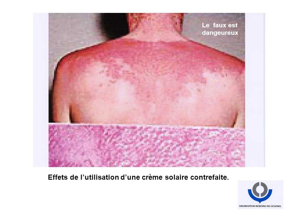 Effets de l'utilisation d'une crème solaire contrefaite.