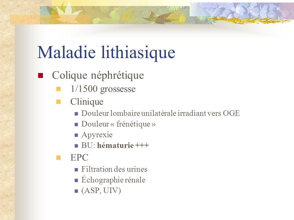 Maladie lithiasique Colique néphrétique 1/1500 grossesse Clinique EPC