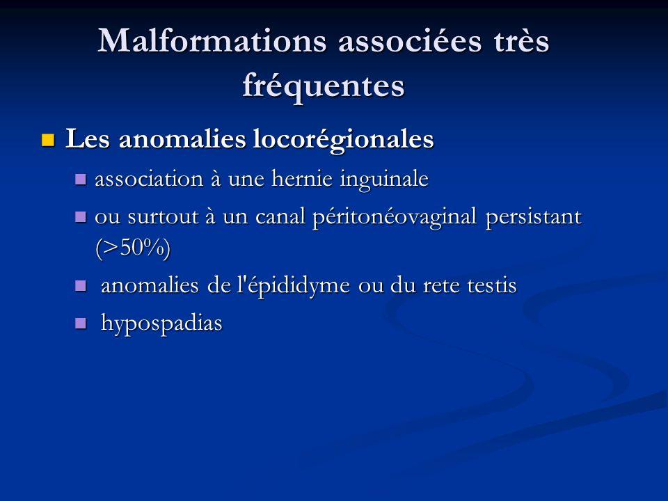 Malformations associées très fréquentes