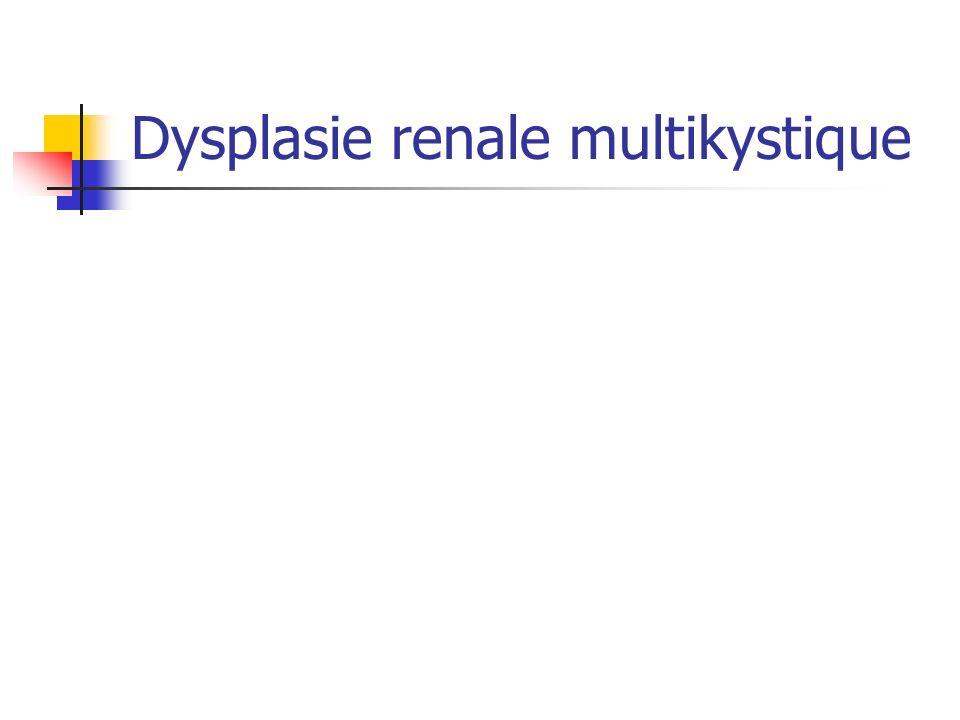Dysplasie renale multikystique