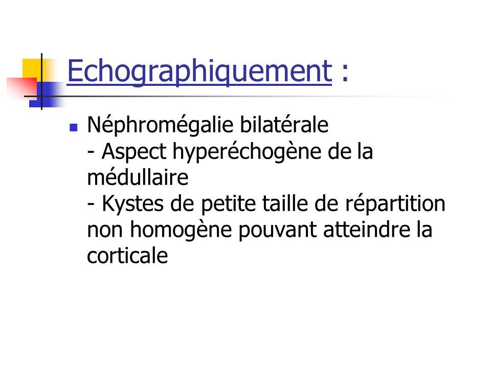 Echographiquement :