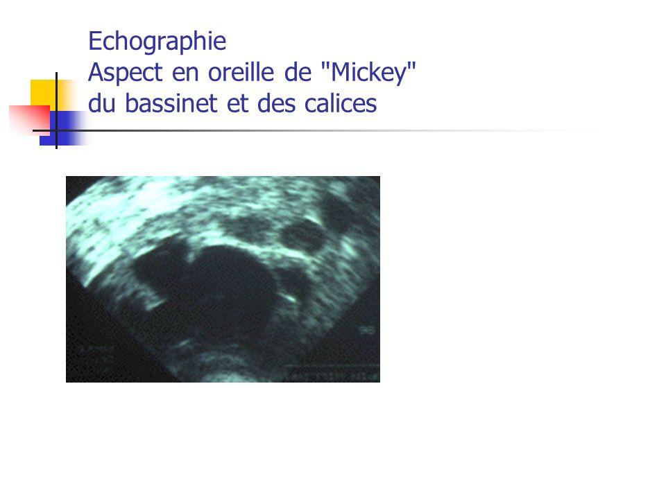 Echographie Aspect en oreille de Mickey du bassinet et des calices