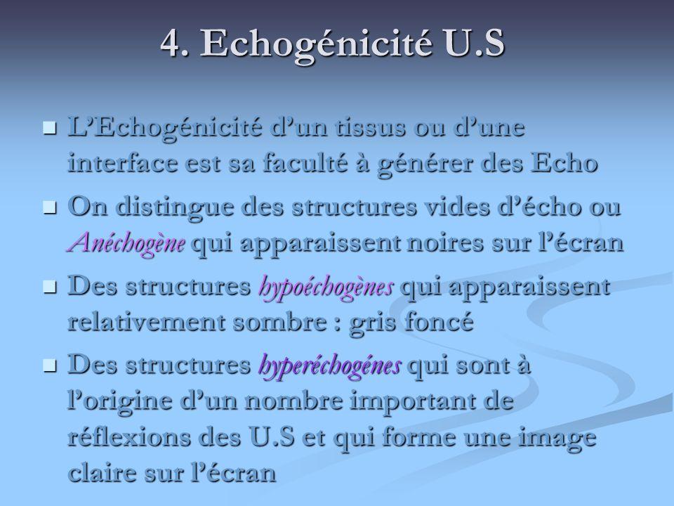 4. Echogénicité U.SL'Echogénicité d'un tissus ou d'une interface est sa faculté à générer des Echo.