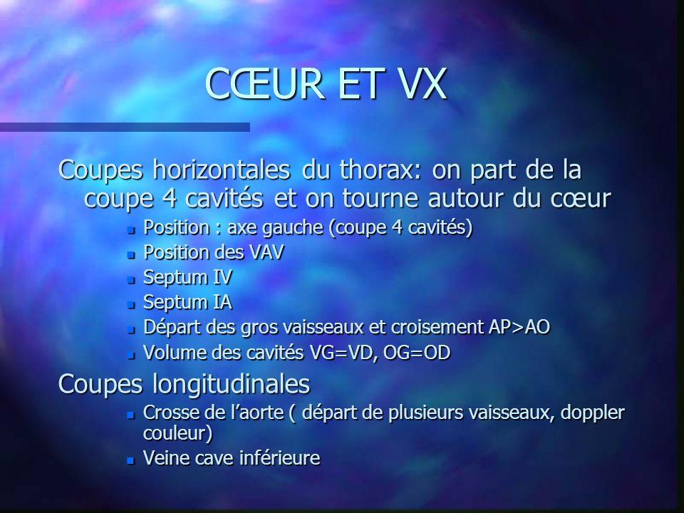 CŒUR ET VX Coupes horizontales du thorax: on part de la coupe 4 cavités et on tourne autour du cœur.