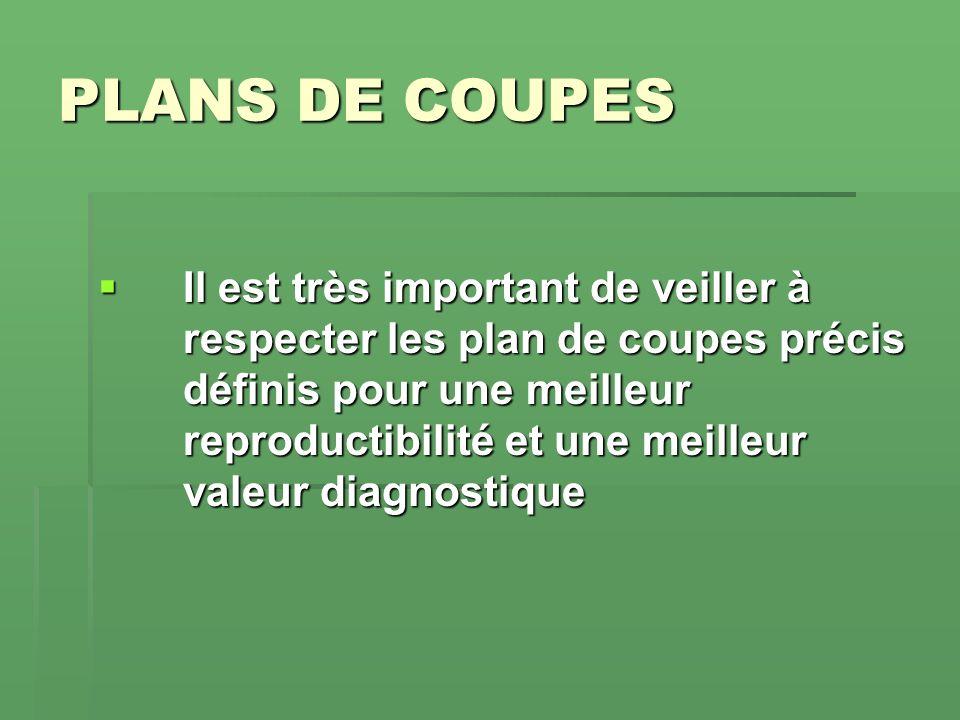PLANS DE COUPES