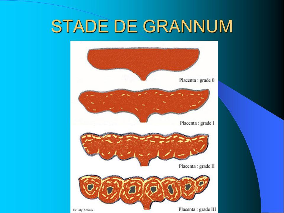 STADE DE GRANNUM