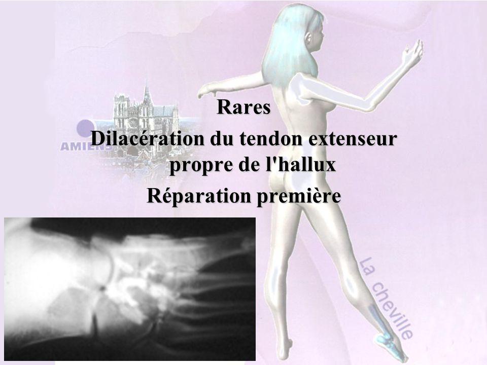 Dilacération du tendon extenseur propre de l hallux