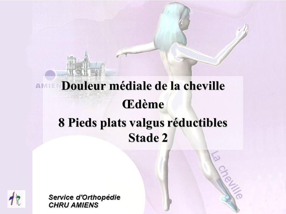 Douleur médiale de la cheville Œdème