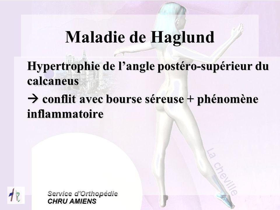 Maladie de Haglund Hypertrophie de l'angle postéro-supérieur du calcaneus.