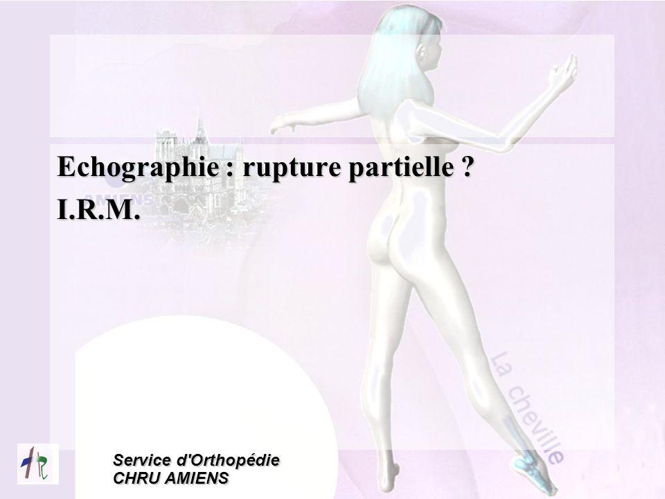 Echographie : rupture partielle