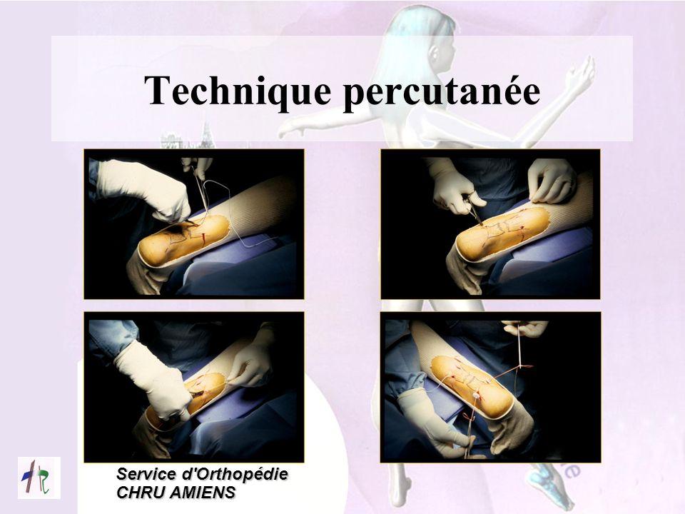 Technique percutanée