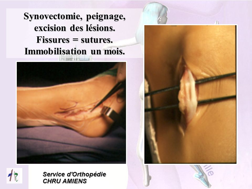 Synovectomie, peignage, excision des lésions. Immobilisation un mois.