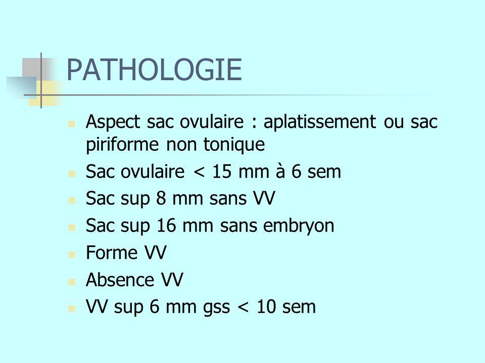 PATHOLOGIE Aspect sac ovulaire : aplatissement ou sac piriforme non tonique. Sac ovulaire < 15 mm à 6 sem.