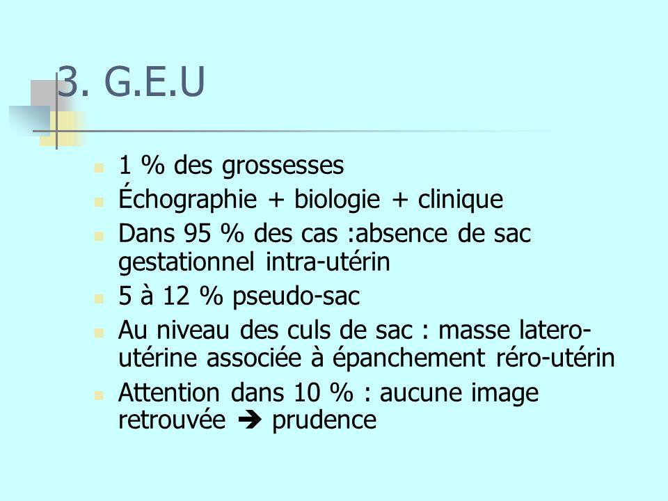 3. G.E.U 1 % des grossesses Échographie + biologie + clinique