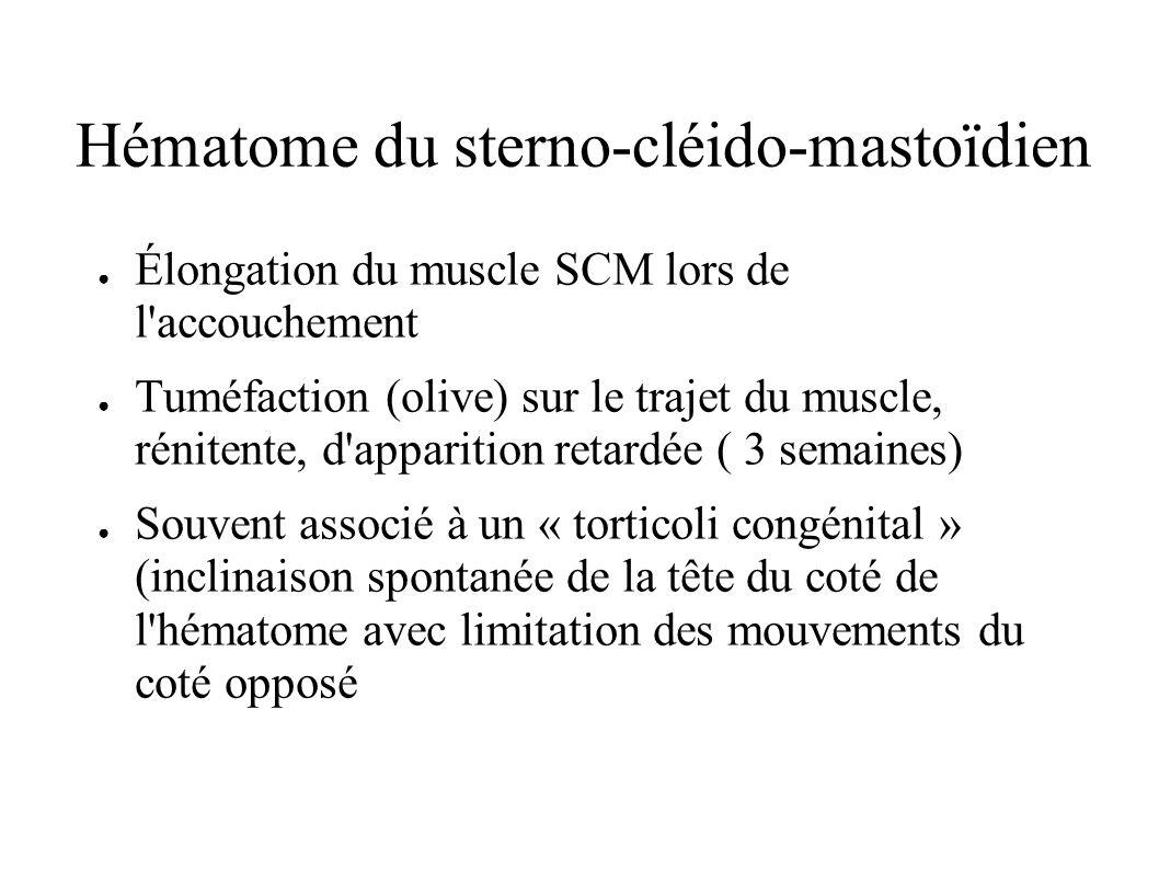 Hématome du sterno-cléido-mastoïdien