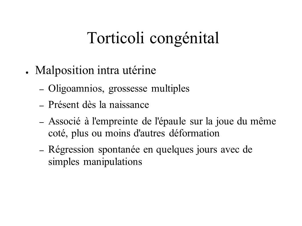 Torticoli congénital Malposition intra utérine