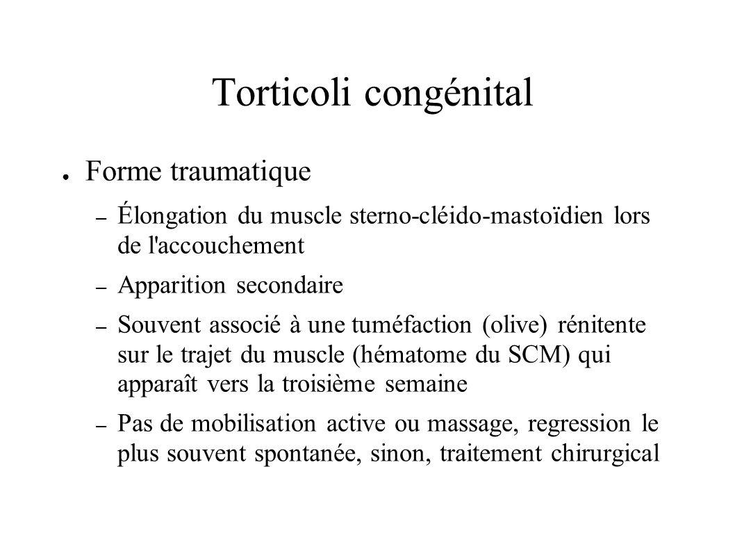 Torticoli congénital Forme traumatique