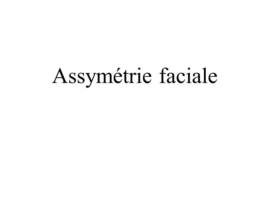 Assymétrie faciale