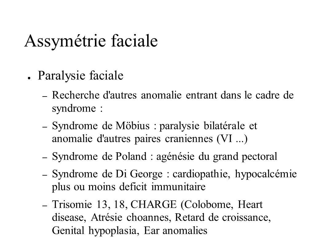 Assymétrie faciale Paralysie faciale