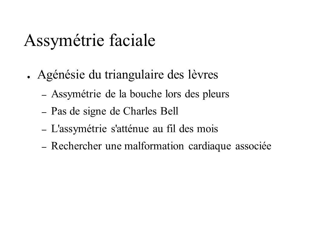 Assymétrie faciale Agénésie du triangulaire des lèvres