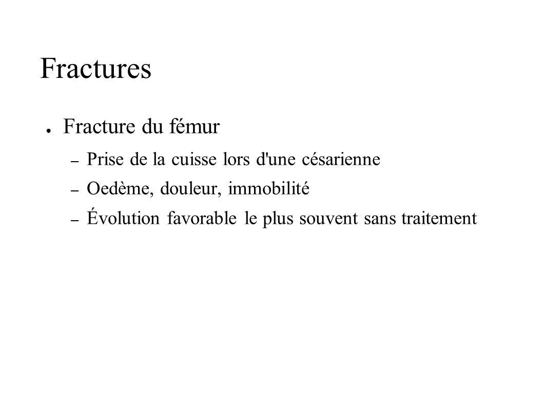 Fractures Fracture du fémur Prise de la cuisse lors d une césarienne
