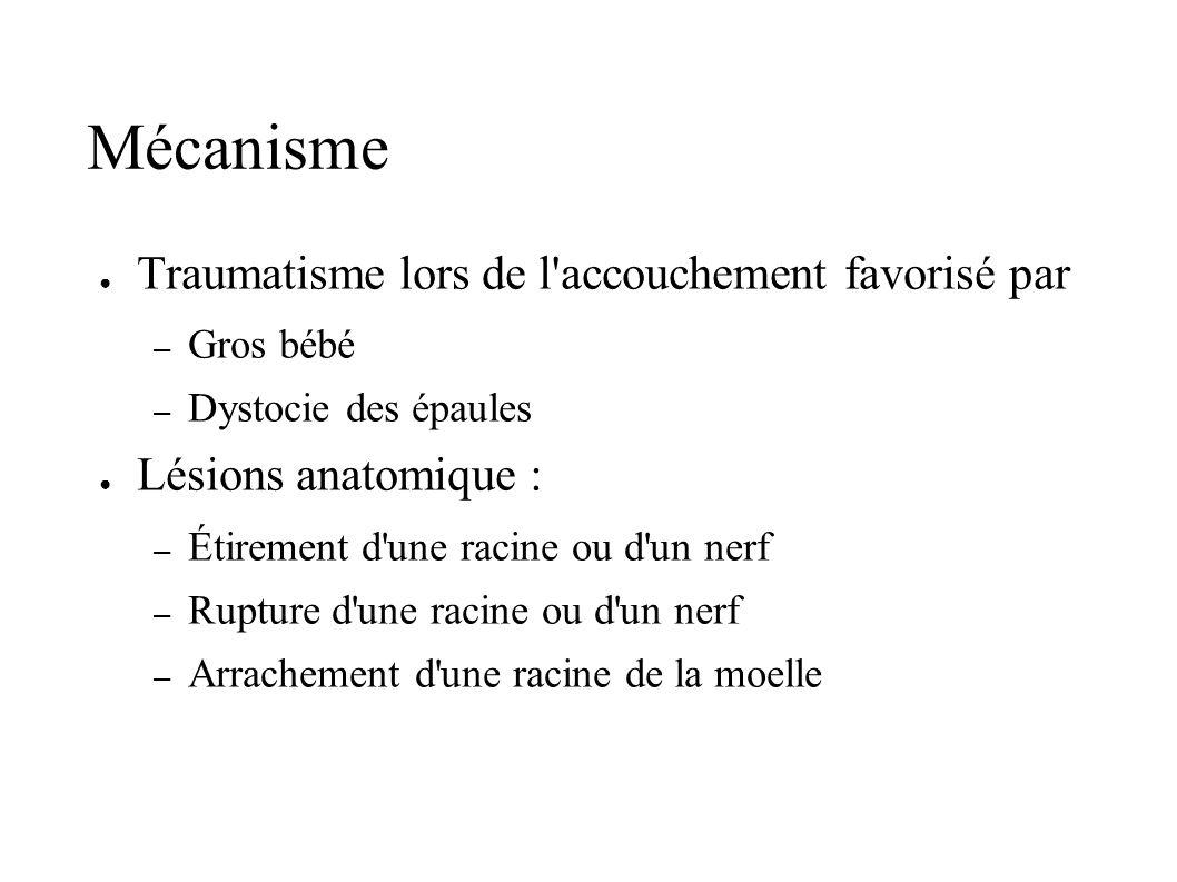 Mécanisme Traumatisme lors de l accouchement favorisé par