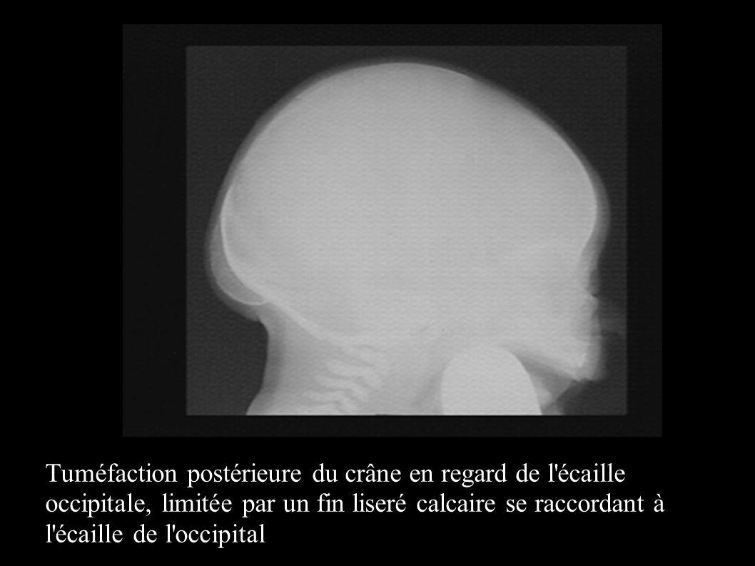 Tuméfaction postérieure du crâne en regard de l écaille occipitale, limitée par un fin liseré calcaire se raccordant à l écaille de l occipital