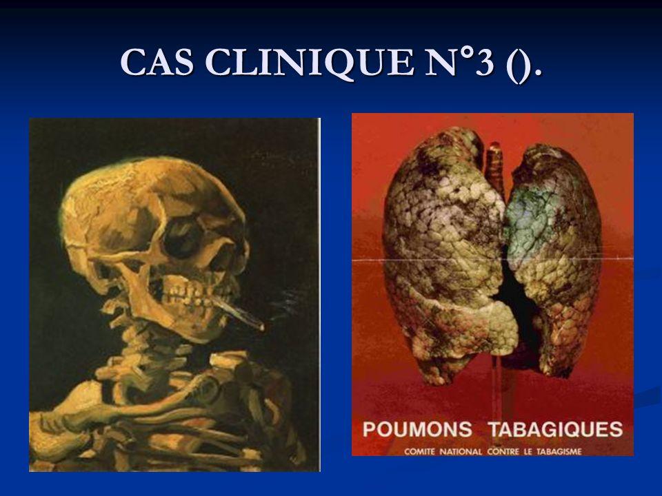 CAS CLINIQUE N°3 ().