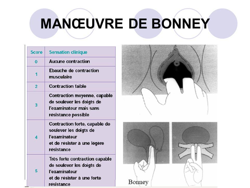 MANŒUVRE DE BONNEY