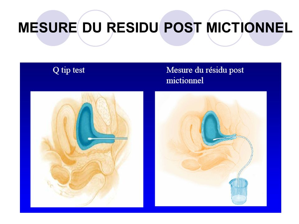 MESURE DU RESIDU POST MICTIONNEL