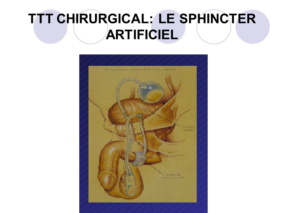 TTT CHIRURGICAL: LE SPHINCTER ARTIFICIEL