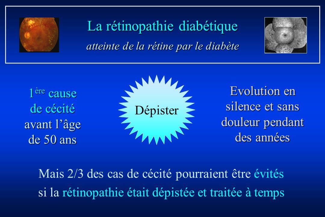 La rétinopathie diabétique atteinte de la rétine par le diabète