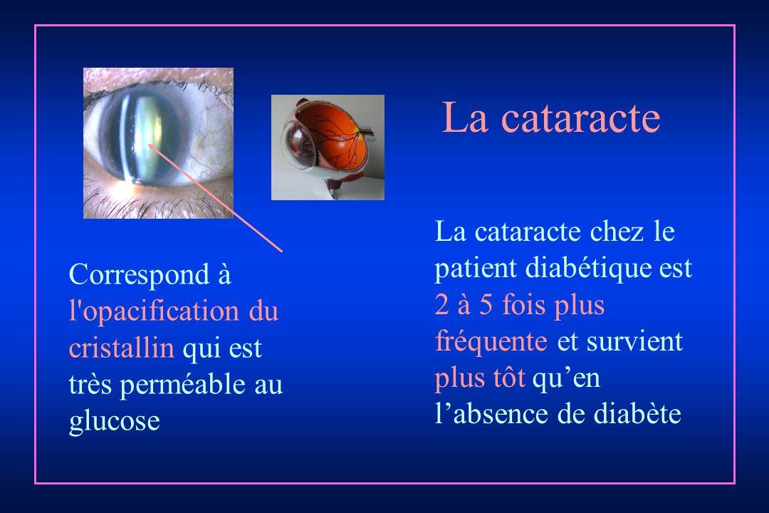 La cataracte La cataracte chez le patient diabétique est 2 à 5 fois plus fréquente et survient plus tôt qu'en l'absence de diabète.